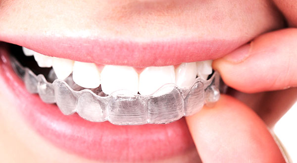 Things to know about Invisalign